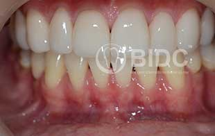 Full Upper Arch Crowns