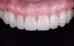 Full Mouth Veneers